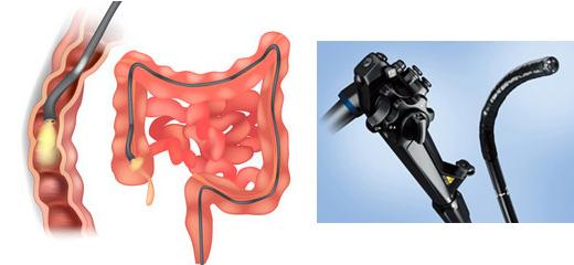 大腸検査機器